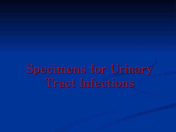 midstream urine collection instructions